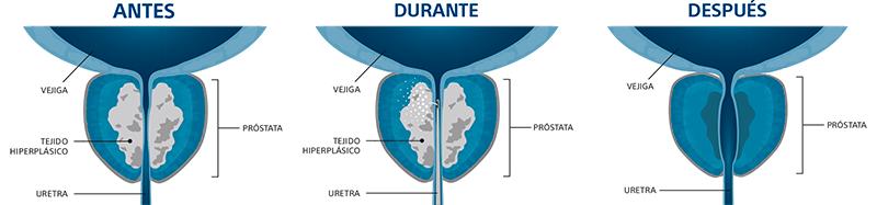 Cómo actúa el vapor de agua Rezum en la próstata